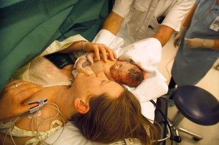 Direkter Hautkontakt ist nach Kaiserschnitt nicht immer möglich (© slovegrove)