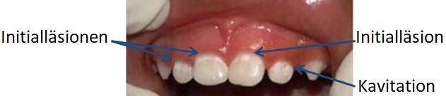 Zähne mit weißen, kreidartigen Stellen