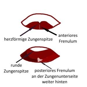 Grafik über das zu kurze Zungenband