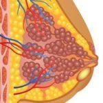 Querschnitt der Brust mit Abszess