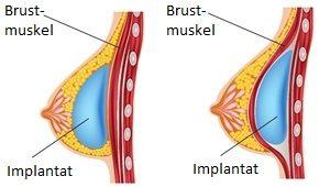 Grafik Brustvergrößerung
