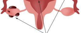 Zeichnung der Gebärmutter mit roten Flecken drauf (Endometrioseherde)