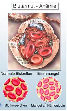 Grafik mit roten Blutkörperchen: gesunde und verkleinerte, blaße Blutkörperchen