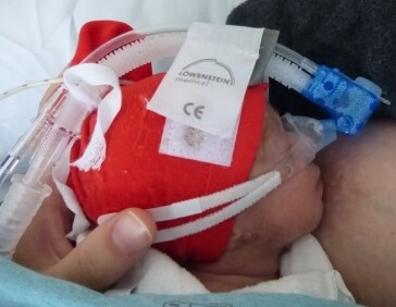 Foto über frühgeborenes Baby an der Brust