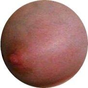 gerötete Stelle an der Brust Mastitis puerperalis